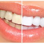 HOT or NOT | Hausmittelchen zum Bleichen der Zähne (+English version)